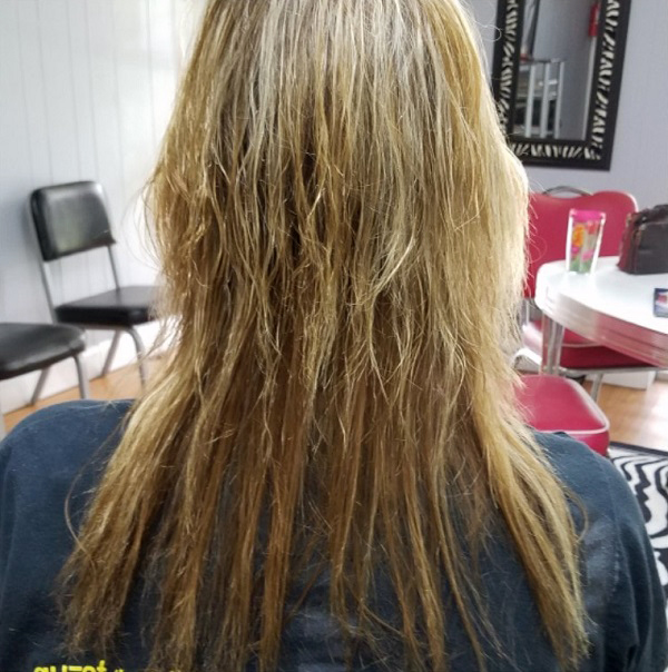 Gut Health Symptoms - Hair Falling Out